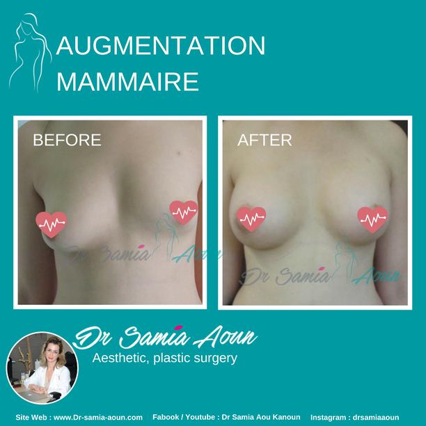 augmentation-mammaire2