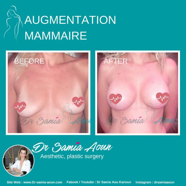 augmentation-mammaire3