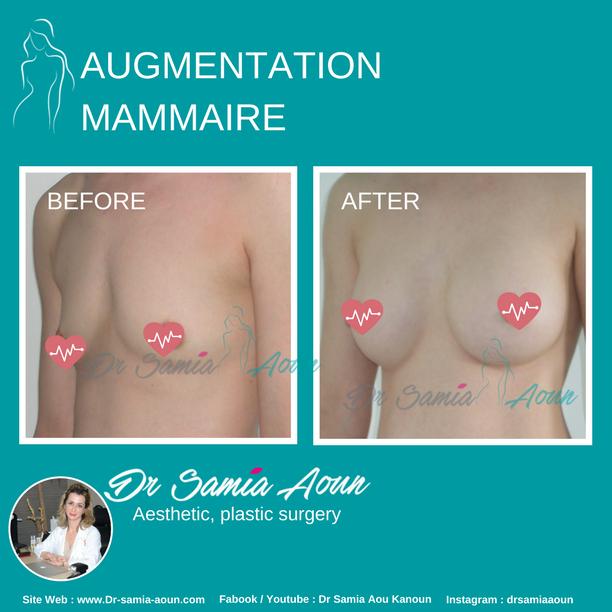 augmentation-mammaire1