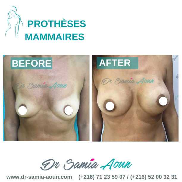 augmentation-mammaire4